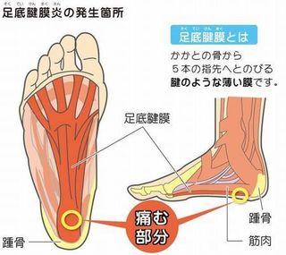 足底筋膜炎.jpg